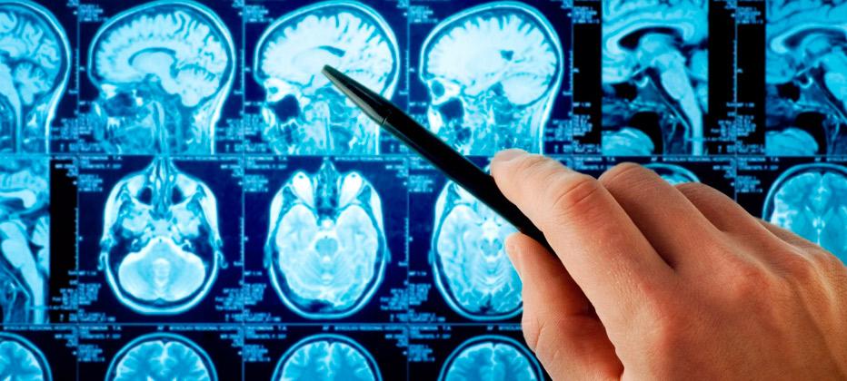 test alzheimer 10 preguntas