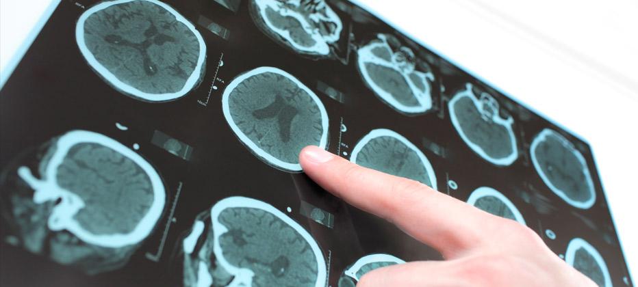 epilepsia tratamiento natural